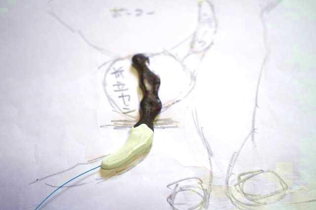 勾玉タイプのチップを前立腺に留置した時の図